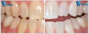 Chi Phí lấy cao răng bao nhiêu tiền là hợp lý? 1