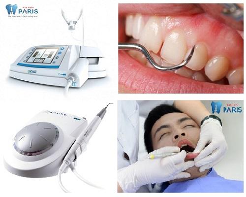 Chi Phí lấy cao răng bao nhiêu tiền là hợp lý? Công nghệ lấy cao răng siêu âm
