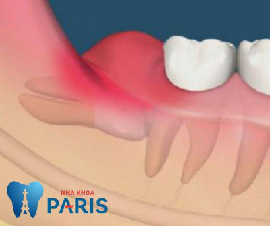 Có nên nhổ răng khôn mọc lệch, ngầm hay không? Bác sĩ giải đáp 2
