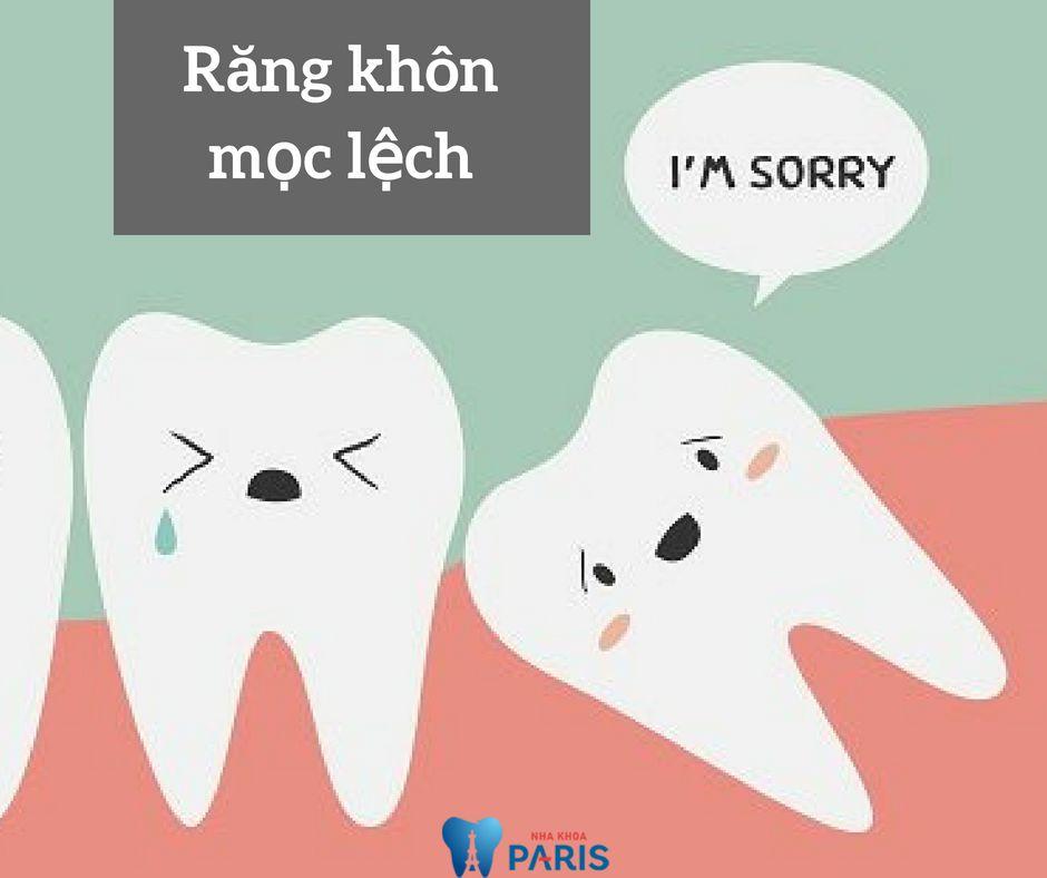 Có nên nhổ răng khôn mọc lệch, ngầm hay không? Bác sĩ giải đáp 4