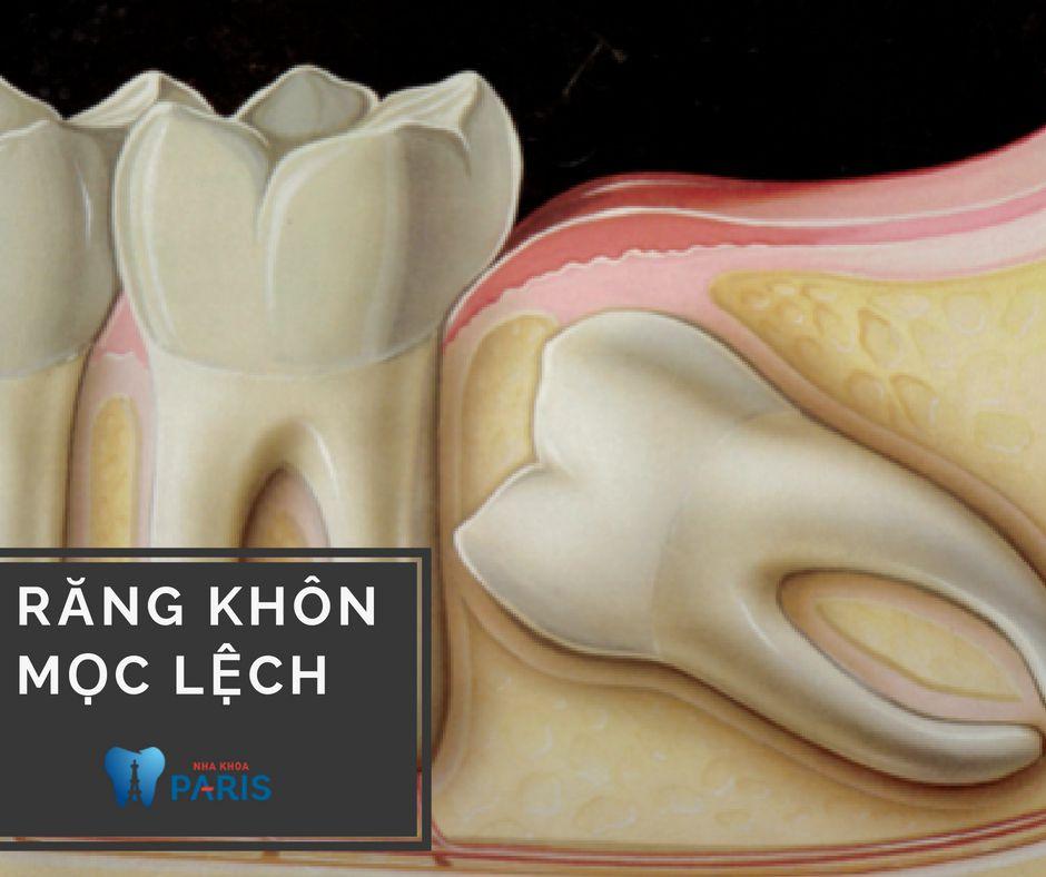Có nên nhổ răng khôn mọc lệch, ngầm hay không? Bác sĩ giải đáp 1