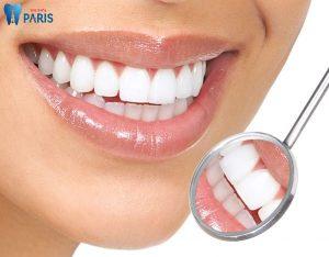 Mách bạn 2 phương pháp làm trắng răng siêu bền đẹp 1