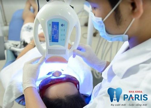 Mách bạn 2 phương pháp làm trắng răng siêu bền đẹp 2