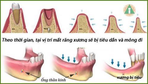 Đừng bao giờ thờ ơ với tình trạng tiêu xương ổ răng! 2