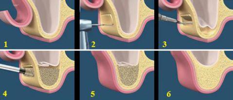 Đừng bao giờ thờ ơ với tình trạng tiêu xương ổ răng! 5