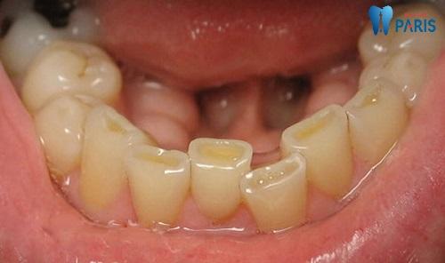 Cách chữa bệnh nghiến răng khi ngủ ban đêm tận gốc 4