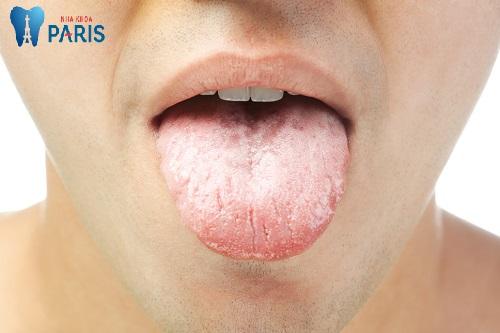 Hiện tượng Khô miệng là bệnh gì và giải đáp về cách điều trị 1