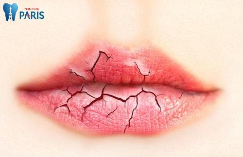 Hiện tượng Khô miệng là bệnh gì và giải đáp về cách điều trị 4