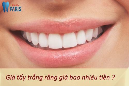 Giá làm trăng răng 1 lần thực hiện là bao nhiêu ? 1