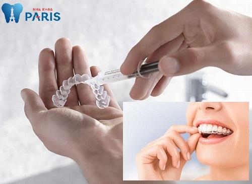 4 lưu ý trước khi quyết định có nên tẩy trắng răng không 2