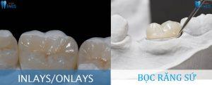 Răng cấm bị mẻ : Sự ảnh hưởng & Cách khắc phục hiệu quả ngay 3