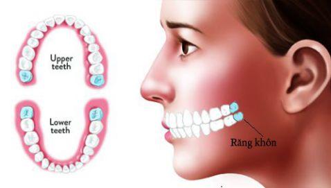 Răng khôn là răng số mấy, thứ tự các răng trên cung hàm? 1