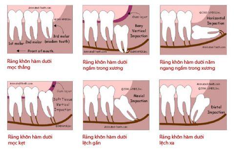 Răng khôn là răng số mấy, thứ tự các răng trên cung hàm? 2