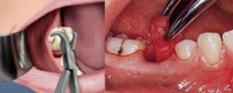 Răng khôn là răng số mấy, thứ tự các răng trên cung hàm? 3