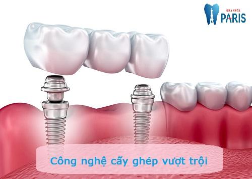Cấy răng Implant 4S - Công nghệ trồng răng bền chắc gấp 10 lần 3