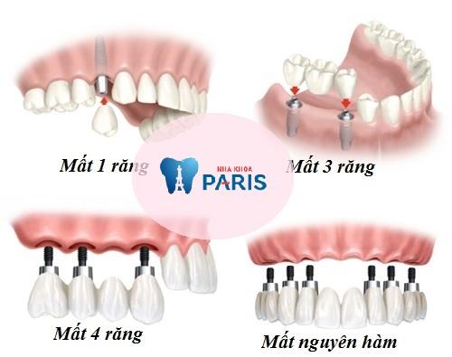 Cấy răng Implant 4S - Công nghệ trồng răng bền chắc gấp 10 lần 2