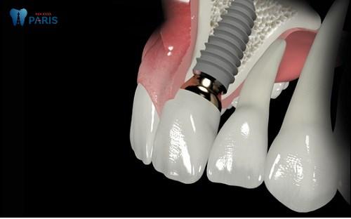Cấy răng Implant 4S - Khôi phục răng mất bền chắc gấp đôi