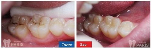 Răng cấm có thay lại không sau khi mọc 1 lần? 3