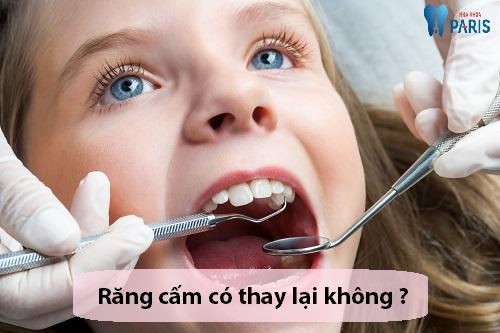 Răng cấm có thay lại không sau khi mọc 1 lần? 2