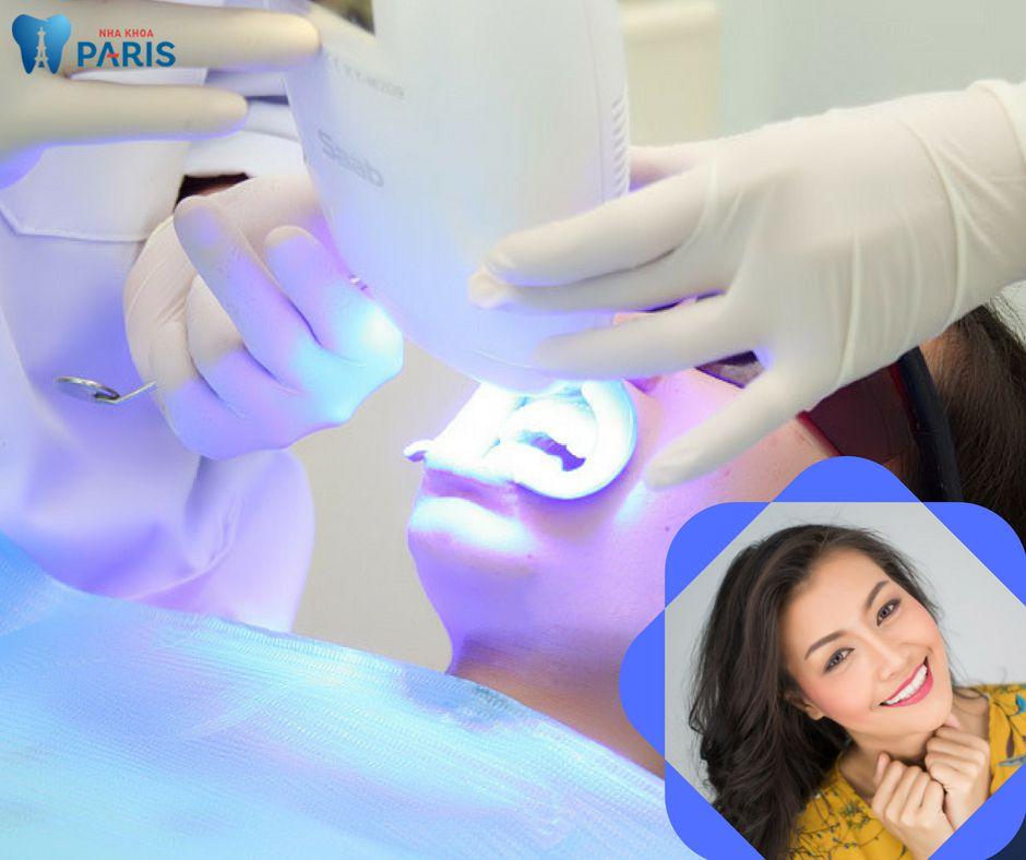 Cách để răng bị ố vàng trắng lại nhanh nhất