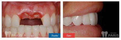 Trồng răng Implant có đau không, có nguy hiểm hay biến chứng không? 2
