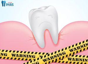 Bác sỹ tư vấn: Cứu nguy răng cấm bị lung lay trước TẾT