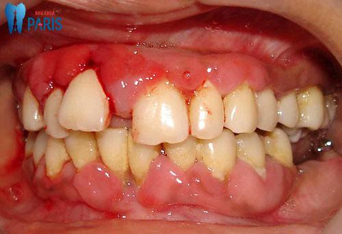 Chân răng bị sưng là dấu hiệu của bệnh gì & Cách khắc phục ?