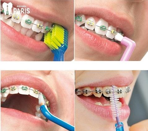 Bộ dụng cụ vệ sinh khi niềng răng gồm những gì ?