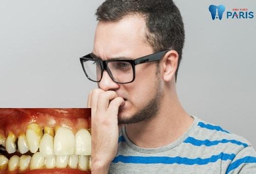 Chân răng bị mục đáng sợ ra sao & Cách khắc phục triệt để nhất 2