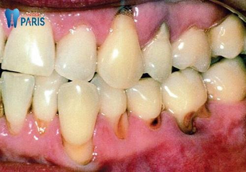 Chân răng bị mục đáng sợ ra sao & Cách khắc phục triệt để nhất 1