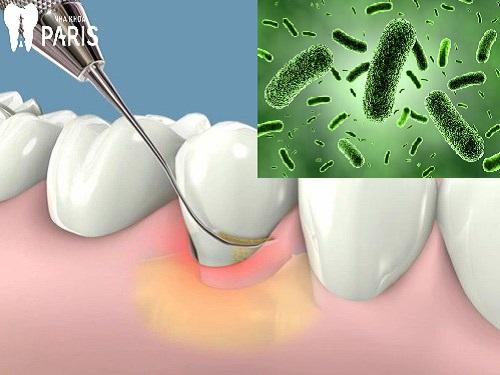 Tại sao chân răng có mùi hôi & cách kiểm soát mùi hôi? 1