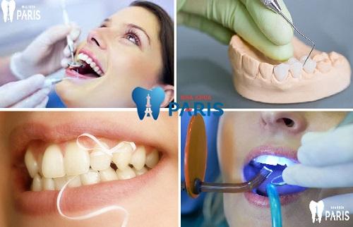 Tại sao chân răng có mùi hôi & cách kiểm soát mùi hôi? 3