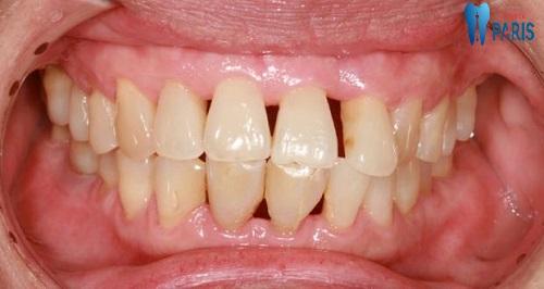 Báo động đỏ về hiện tượng chân răng bị hở 1