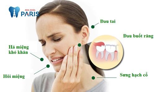 Loay hoay: bị mọc răng khôn phải làm sao để giảm đau nhức ?