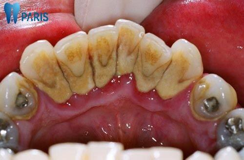 Chân răng bị vàng phải làm sao để làm trắng lại? 1