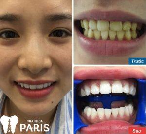 Chân răng bị vàng phải làm sao để làm trắng lại? 3
