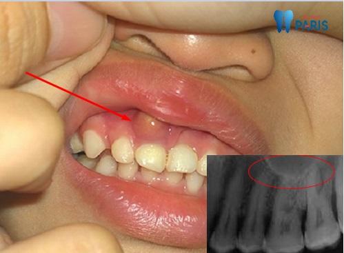 Cảnh báo : U nang chân răng coi chừng mất răng cả hàm 1