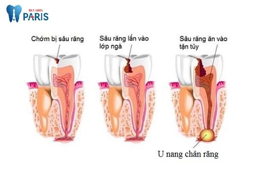 Cảnh báo : U nang chân răng coi chừng mất răng cả hàm 2