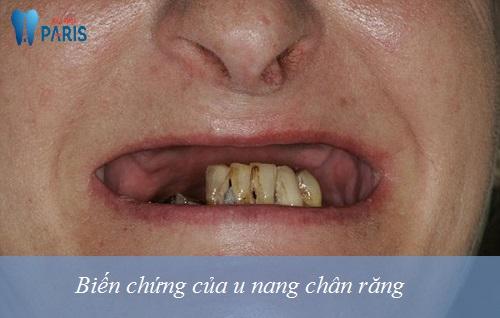 Cảnh báo : U nang chân răng coi chừng mất răng cả hàm 3
