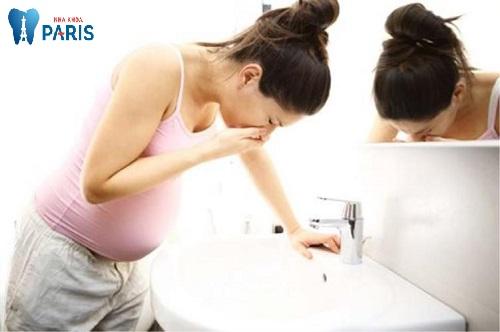 Cách xử lý viêm chân răng khi mang thai TRIỆT ĐỂ và AN TOÀN 1