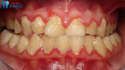 Cách xử lý viêm chân răng khi mang thai TRIỆT ĐỂ và AN TOÀN 2