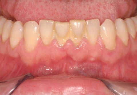 Lấy cao răng có làm răng trắng không? 1