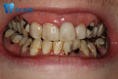 5 Cách chữa sâu răng ở người lớn tại nhà TẬN GỐC hiệu quả vĩnh viễn 1