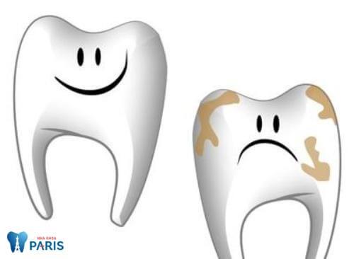 Bị sâu răng phải làm sao khắc phục hiệu quả?