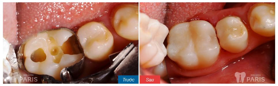 Bị sâu răng có chữa được không ?