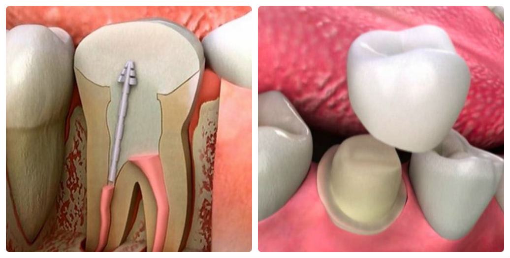 """"""" Sốt sắng"""" bị sâu răng có chữa được không ?"""