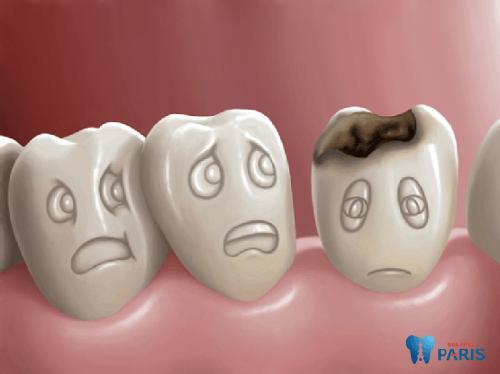 Bệnh sâu răng ở trẻ em và những thông tin phụ huynh cần biết 1
