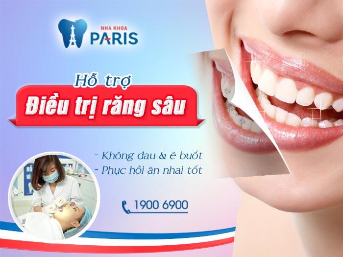 Cẩm nang các loại thuốc chữa sâu răng cho hiệu quả bất ngờ 5