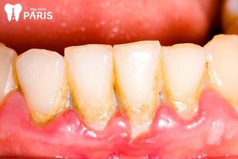 Cao răng mới là nguyên nhân chính dẫn đến tình trạng hôi miệng