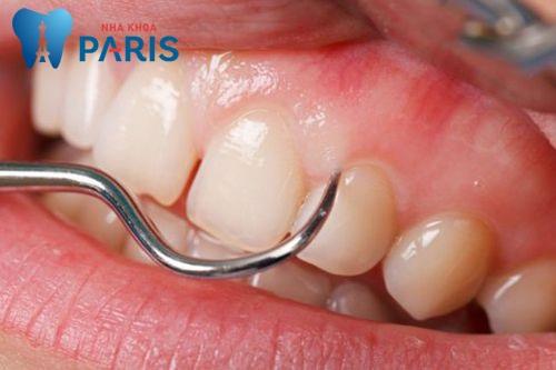 Tại sao xỉa răng có MÙI HÔI & cách xử lý dứt điểm ? 2